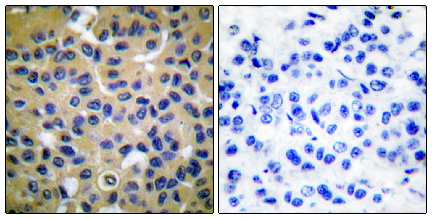 COL2A1 Antibody (OAAF01758) in Human breast carcinoma cells using Immunohistochemistry