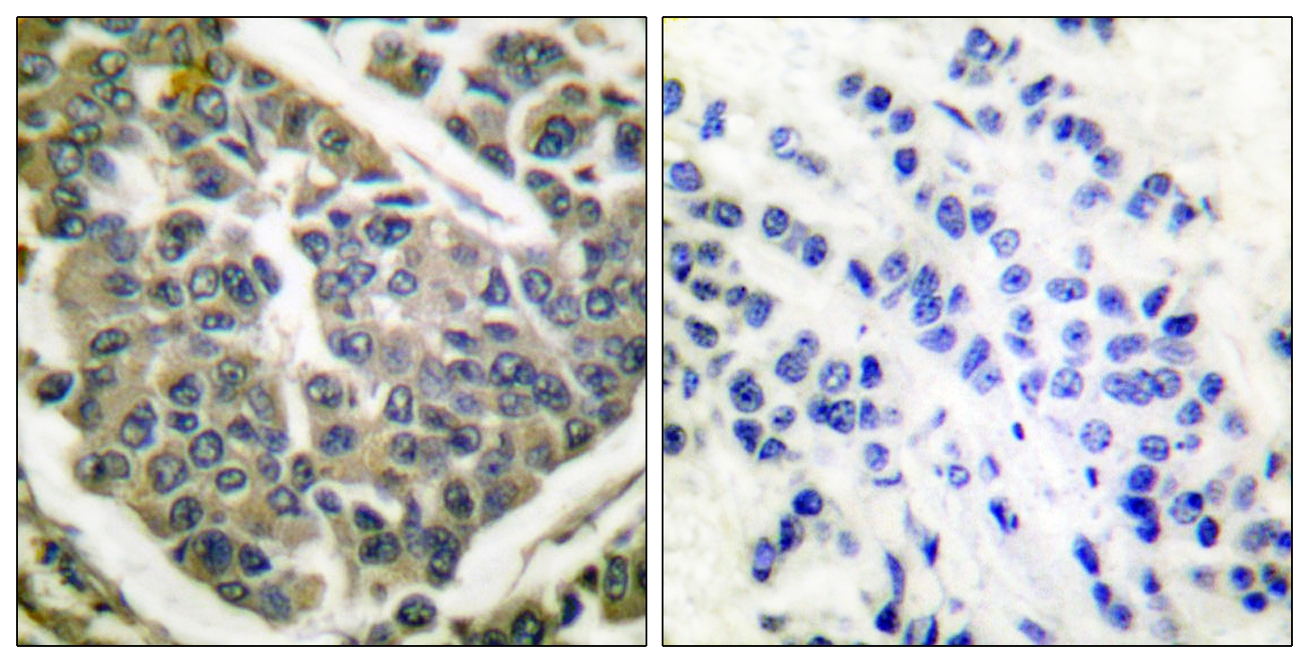 COL4A1 Antibody (OAAF01760) in Human breast carcinoma cells using Immunohistochemistry