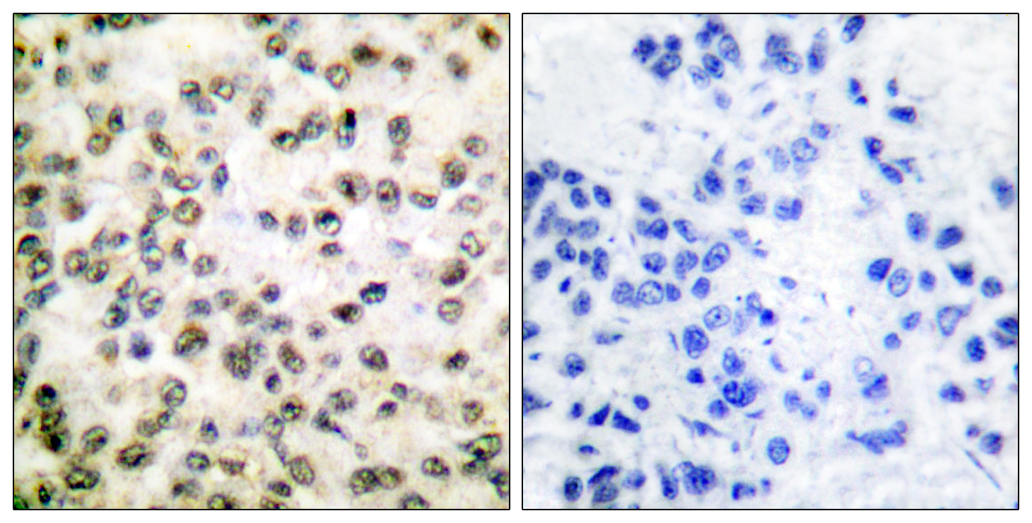 CREBBP Antibody (OAAF01764) in Human breast carcinoma cells using Immunohistochemistry