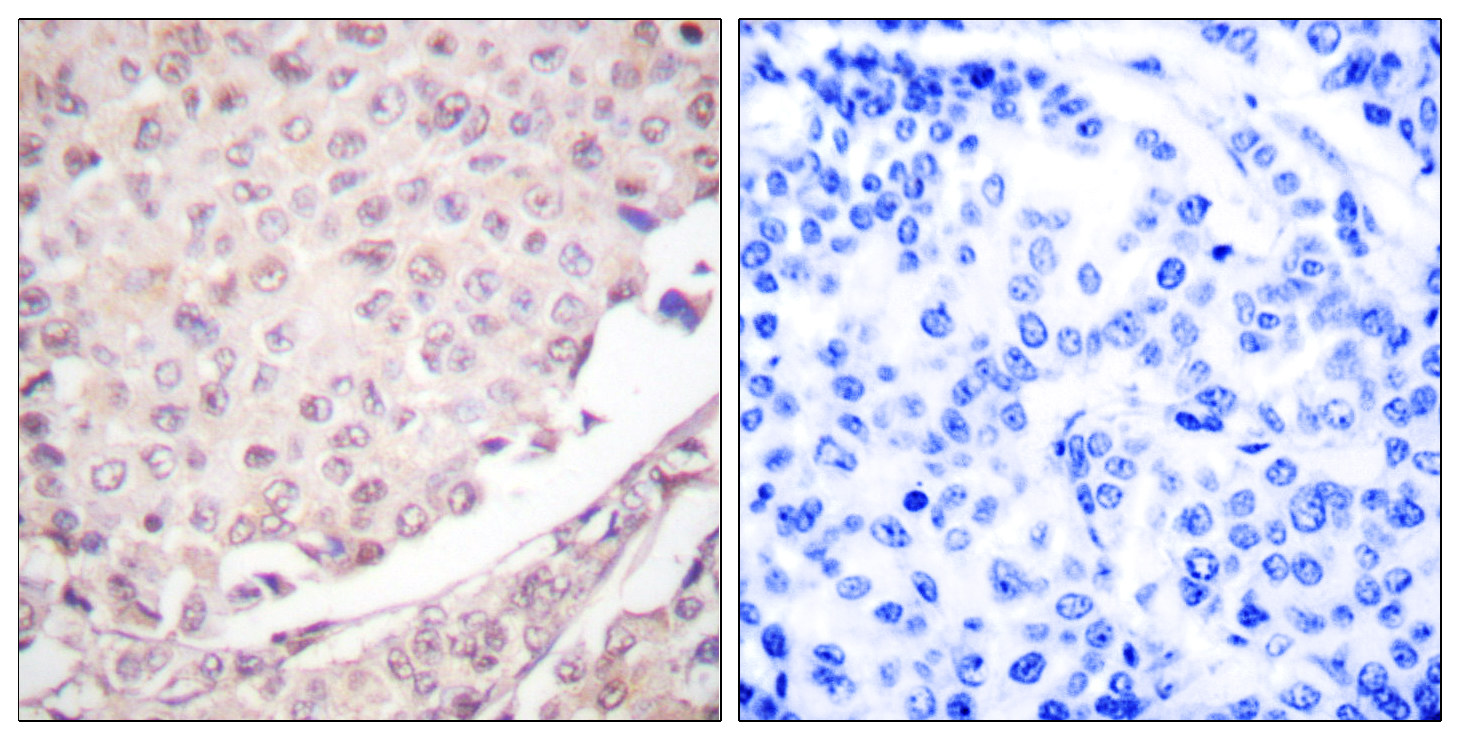 CUL1 Antibody (OAAF01765) in Human lung carcinoma cells using Immunohistochemistry
