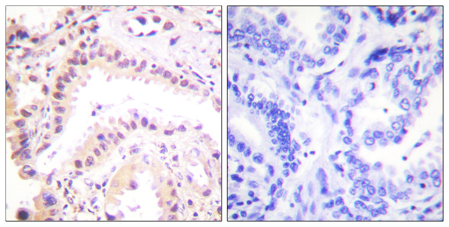CUL2 Antibody (OAAF01766) in Human lung carcinoma cells using Immunohistochemistry