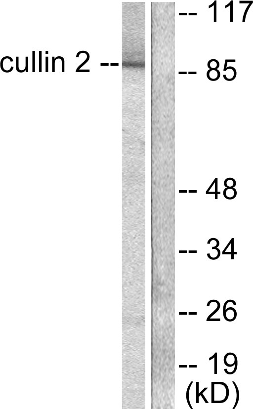 CUL2 Antibody (OAAF01766) in LOVO cells using Western Blot