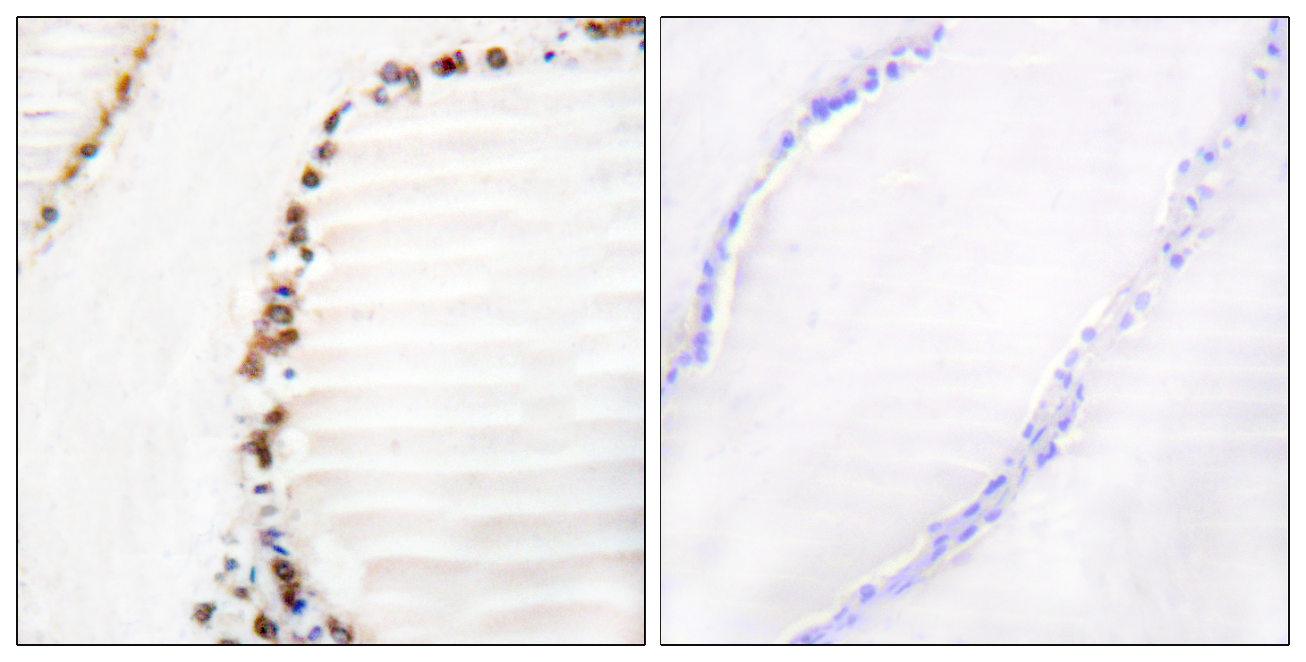 CUL3 Antibody (OAAF01767) in Human thyroid gland cells using Immunohistochemistry