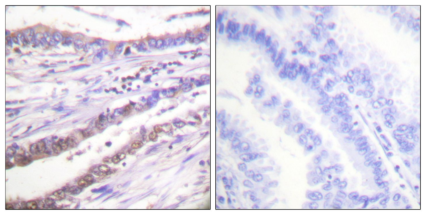 CCNA1 Antibody (OAAF01768) in Human lung carcinoma cells using Immunohistochemistry