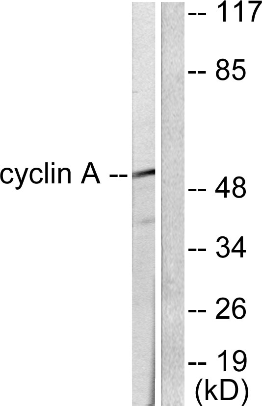 CCNA1 Antibody (OAAF01768) in COS7 cells using Western Blot