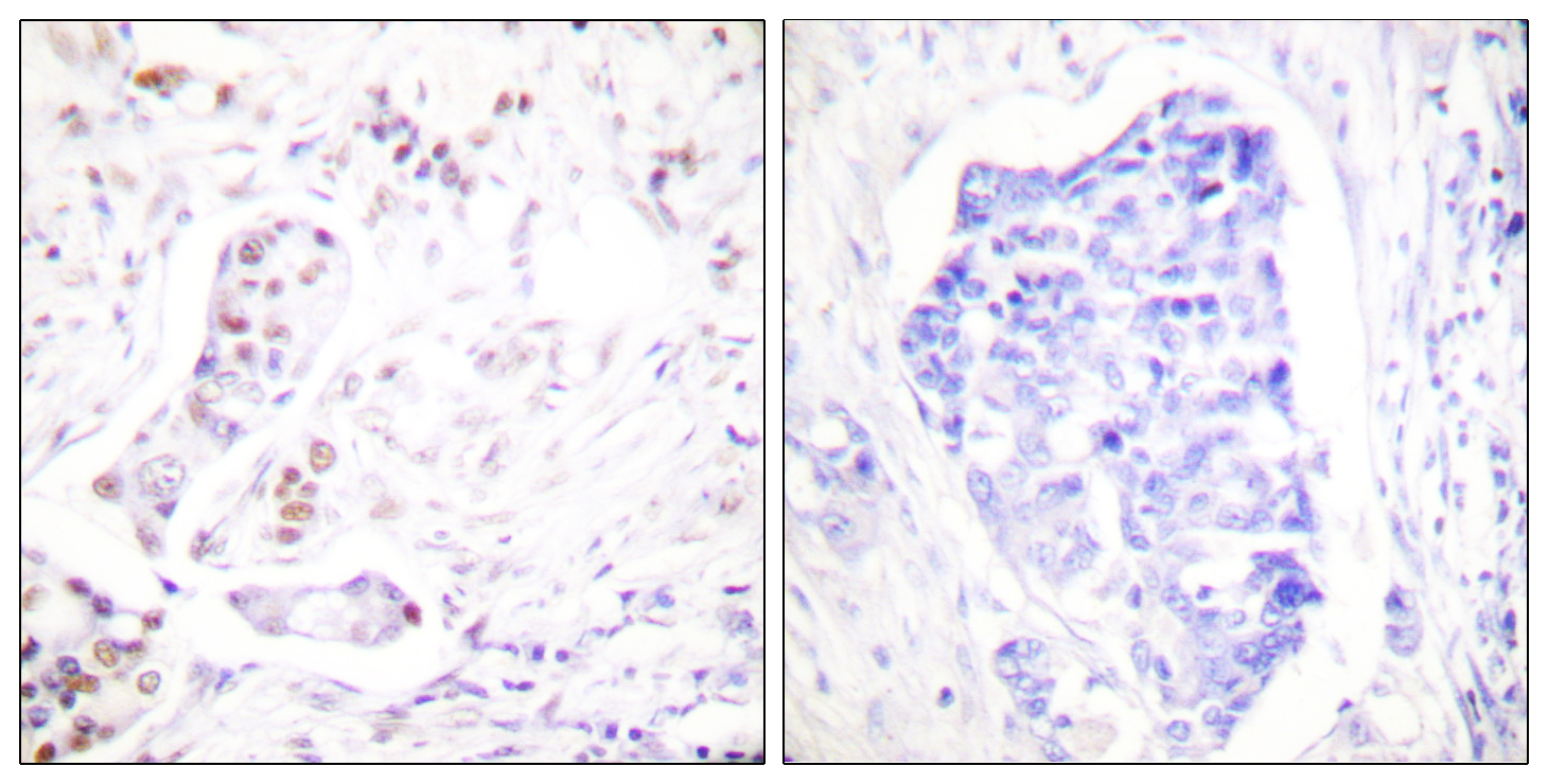 CCNA1 Antibody (OAAF01769) in Human breast carcinoma cells using Immunohistochemistry