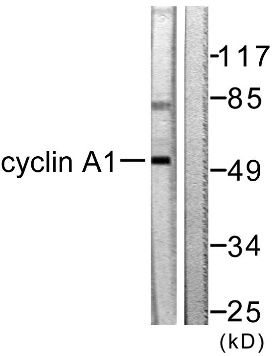 CCNA1 Antibody (OAAF01769) in SKOV3 cells using Western Blot