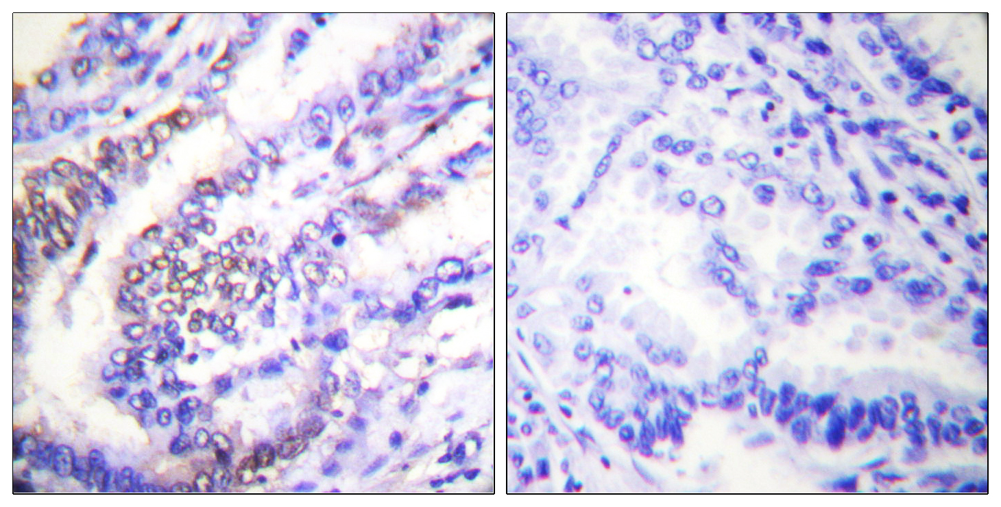 CCNE1 Antibody (OAAF01770) in Human lung carcinoma cells using Immunohistochemistry