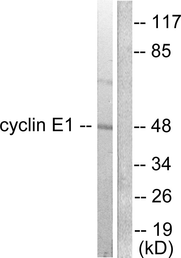 CCNE1 Antibody (OAAF01770) in K562 cells using Western Blot