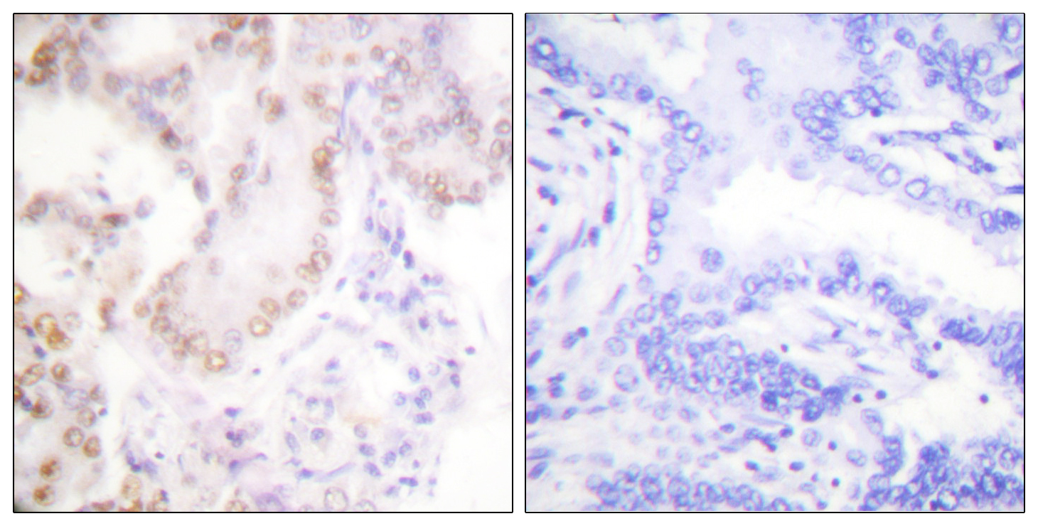 CCNG1 Antibody (OAAF01772) in Human lung carcinoma cells using Immunohistochemistry