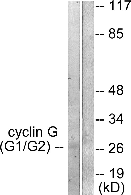 CCNG1 Antibody (OAAF01772) in Jurkat cells using Western Blot