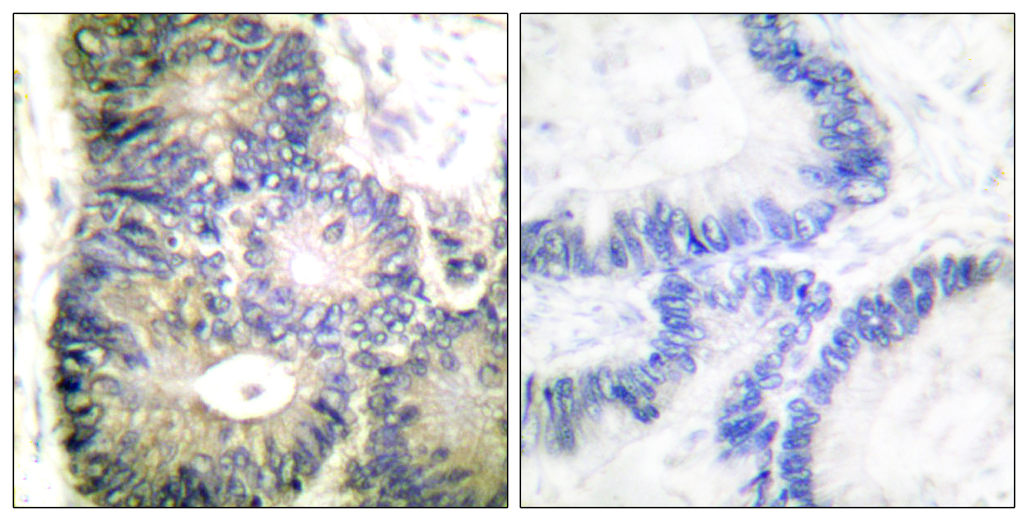 CYCS Antibody (OAAF01773) in Human colon carcinoma cells using Immunohistochemistry