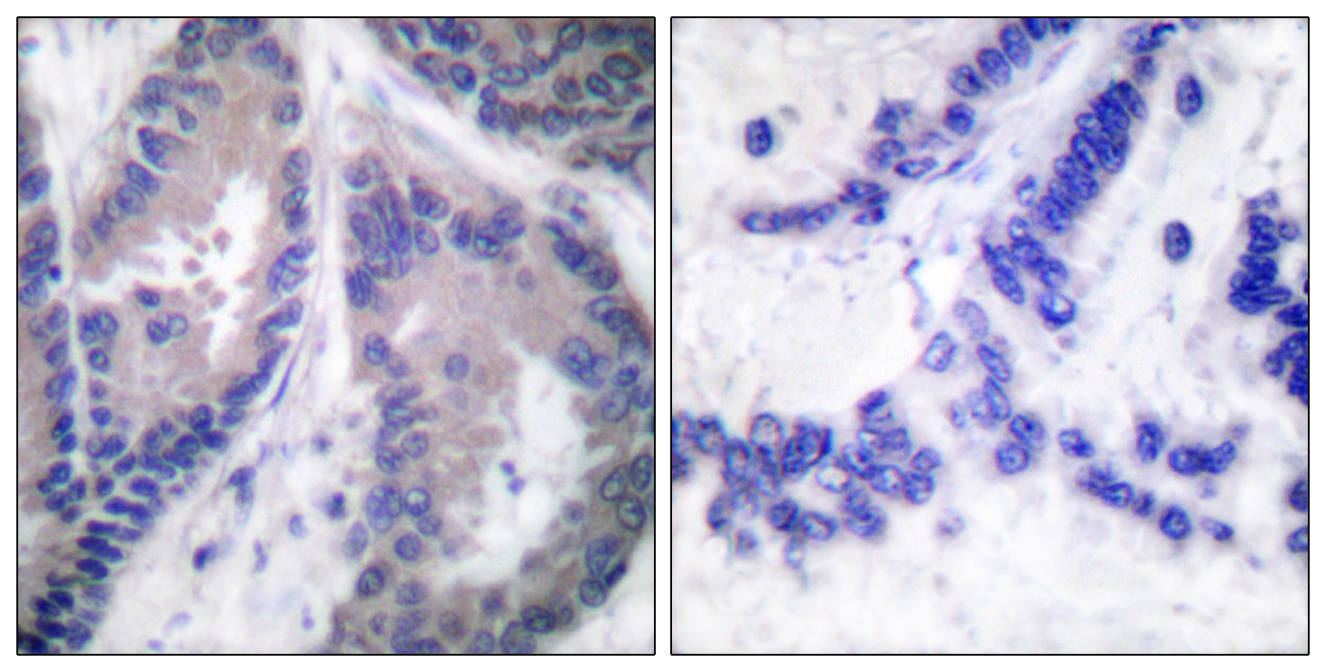 COL18A1 Antibody (OAAF01782) in Human lung carcinoma cells using Immunohistochemistry