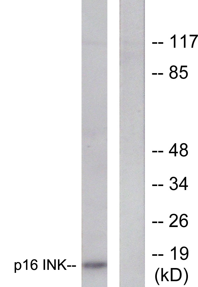 CDKN2A Antibody (OAAF01887) in HeLa cells using Western Blot