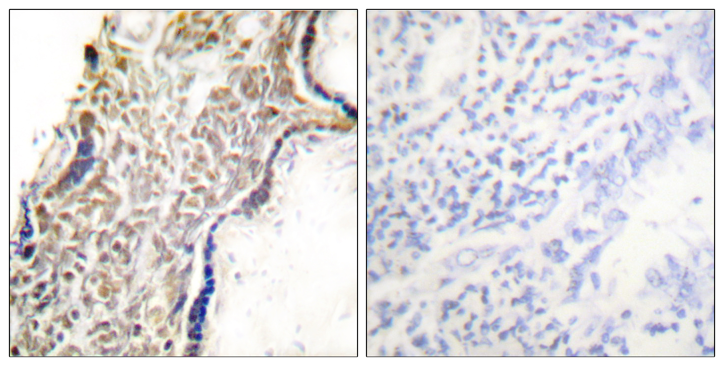 CDKN2A Antibody (OAAF01888) in Human placenta cells using Immunohistochemistry