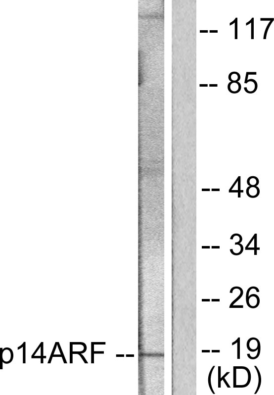 CDKN2A Antibody (OAAF01888) in HeLa cells using Western Blot