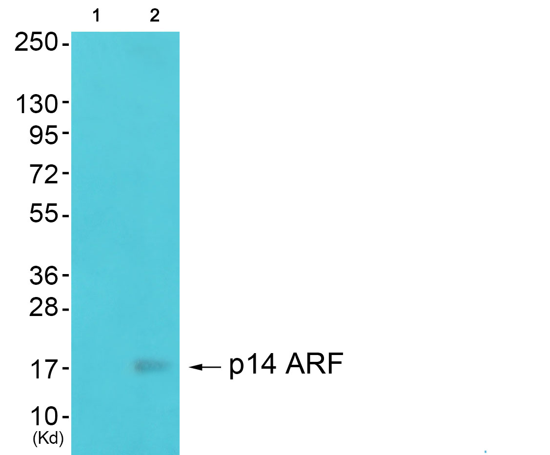 CDKN2A Antibody (OAAF01888) in 293 cells using Western Blot