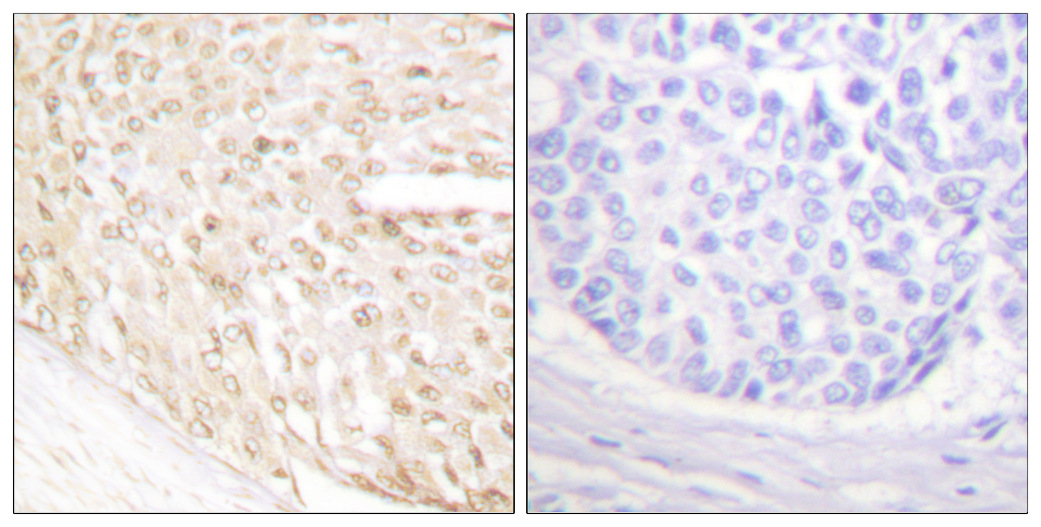 CDKN2C Antibody (OAAF01890) in Human breast carcinoma cells using Immunohistochemistry