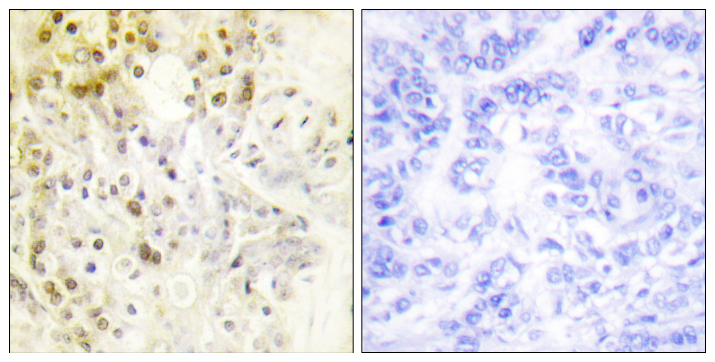 CCNL1 Antibody (OAAF01897) in Human breast carcinoma cells using Immunohistochemistry
