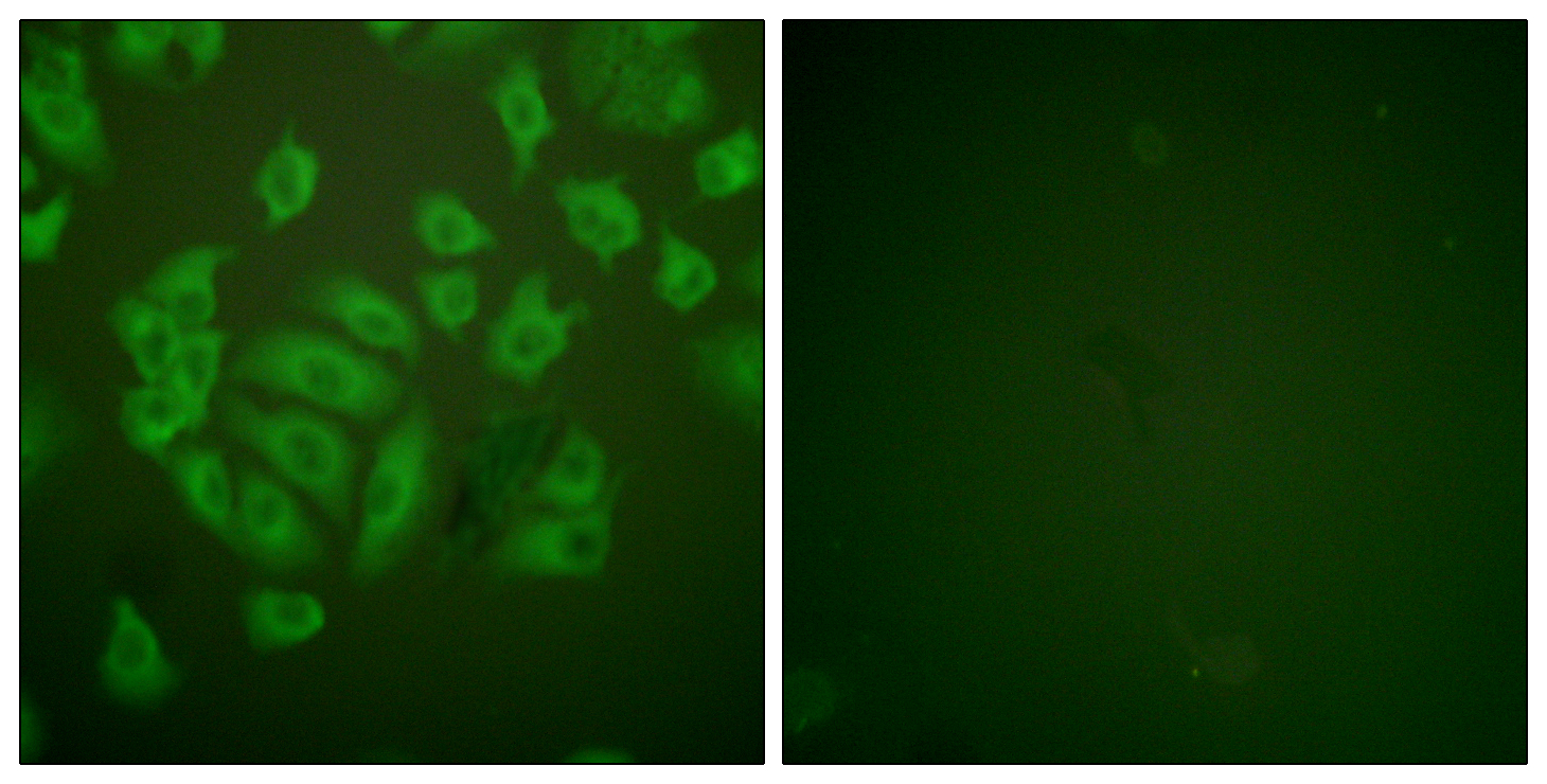 CSTA Antibody (OAAF01927) in A549 cells using Immunofluorescence
