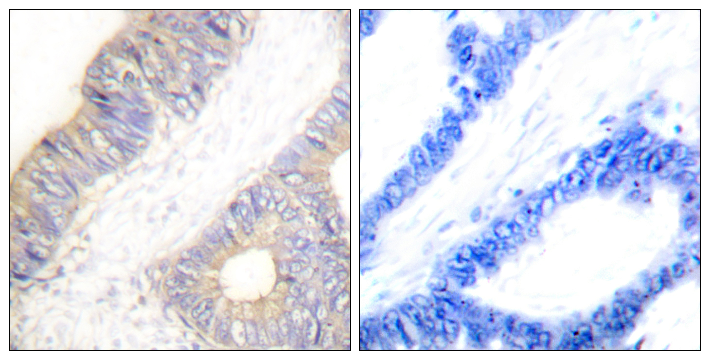 CSTA Antibody (OAAF01927) in Human colon carcinoma cells using Immunohistochemistry