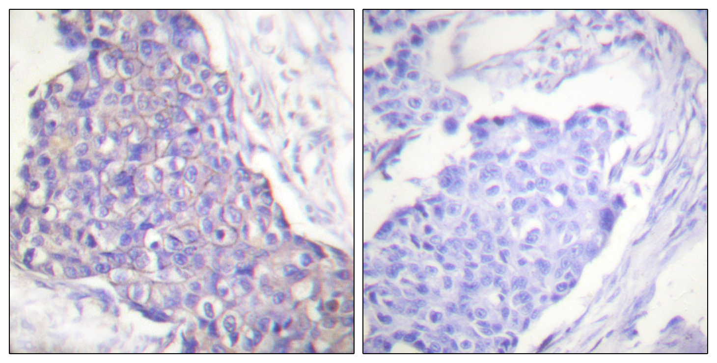 CD40 Antibody (OAAF01948) in Human breast carcinoma cells using Immunohistochemistry