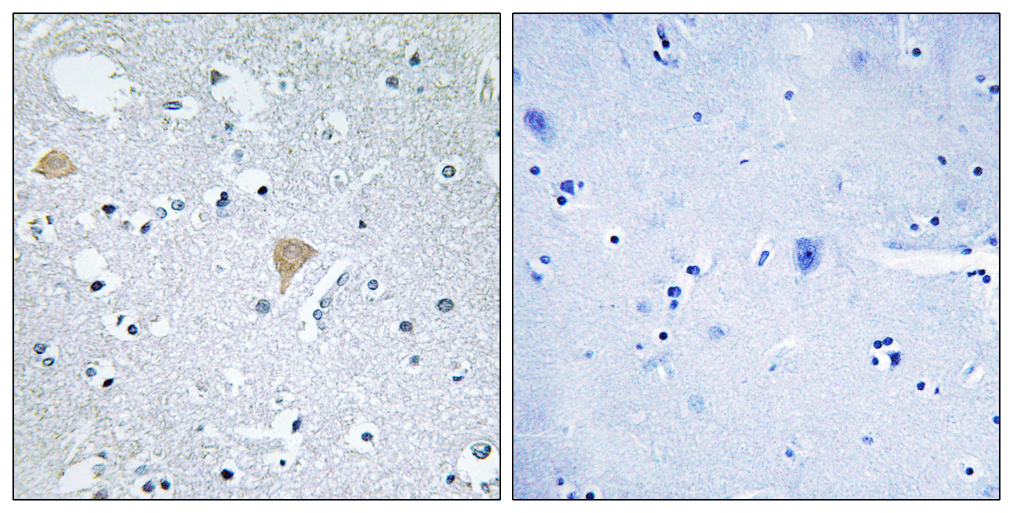 CIT Antibody (OAAF02000) in Human brain cells using Immunohistochemistry