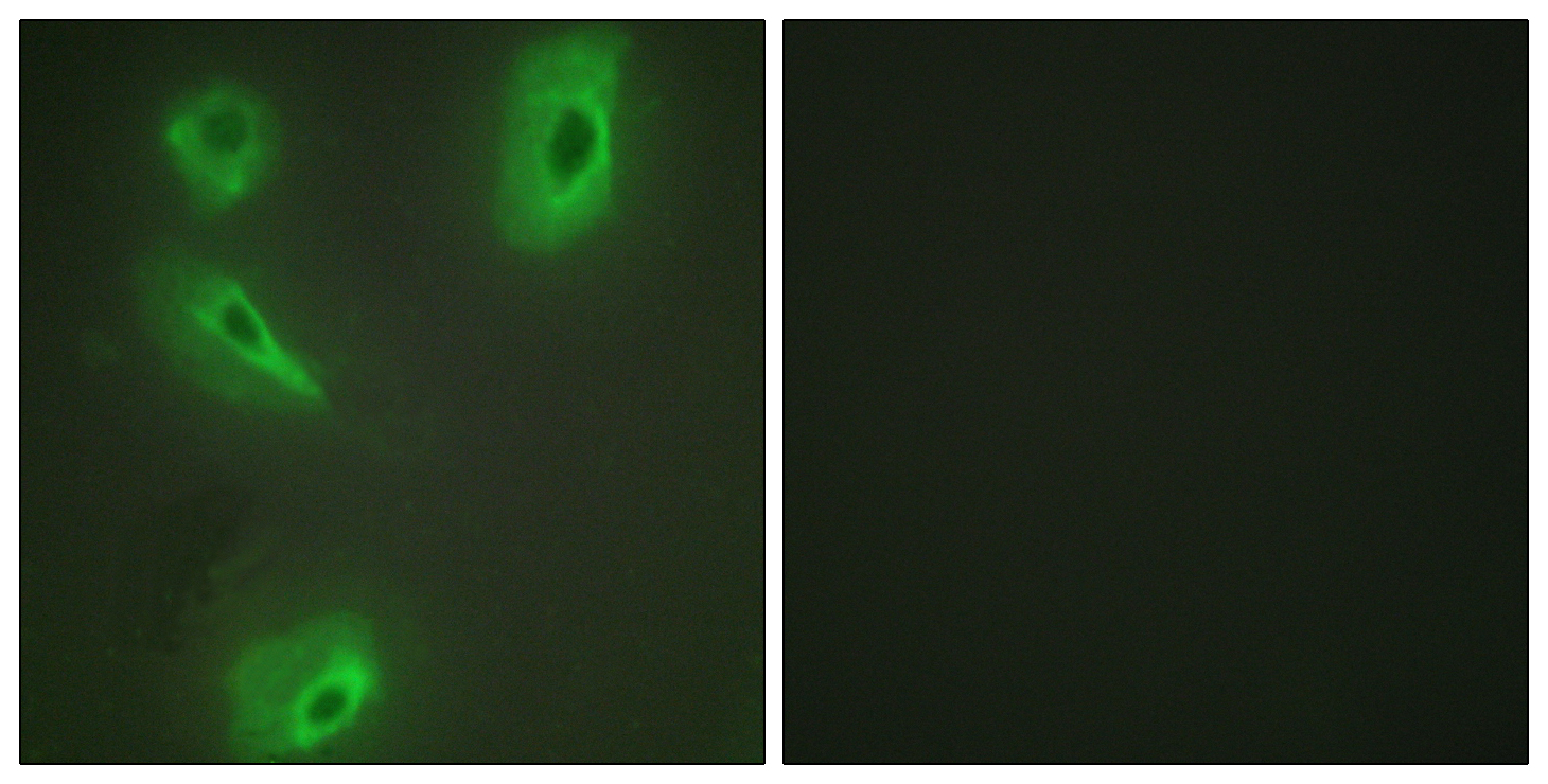 BCKDK Antibody (OAAF02006) in HeLa cells using Immunofluorescence