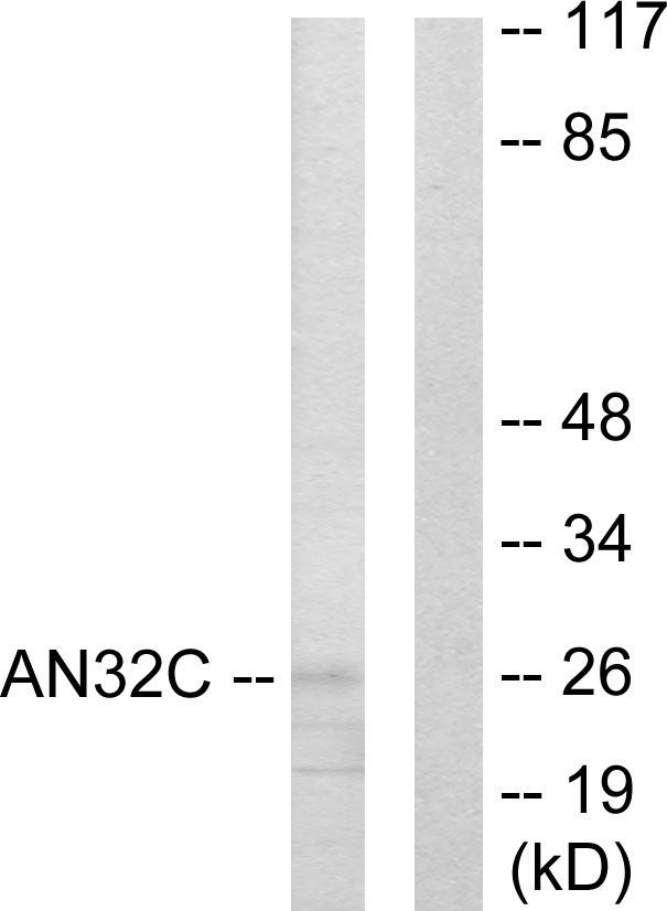 ANP32C Antibody (OAAF02022) in HUVEC cells using Western Blot