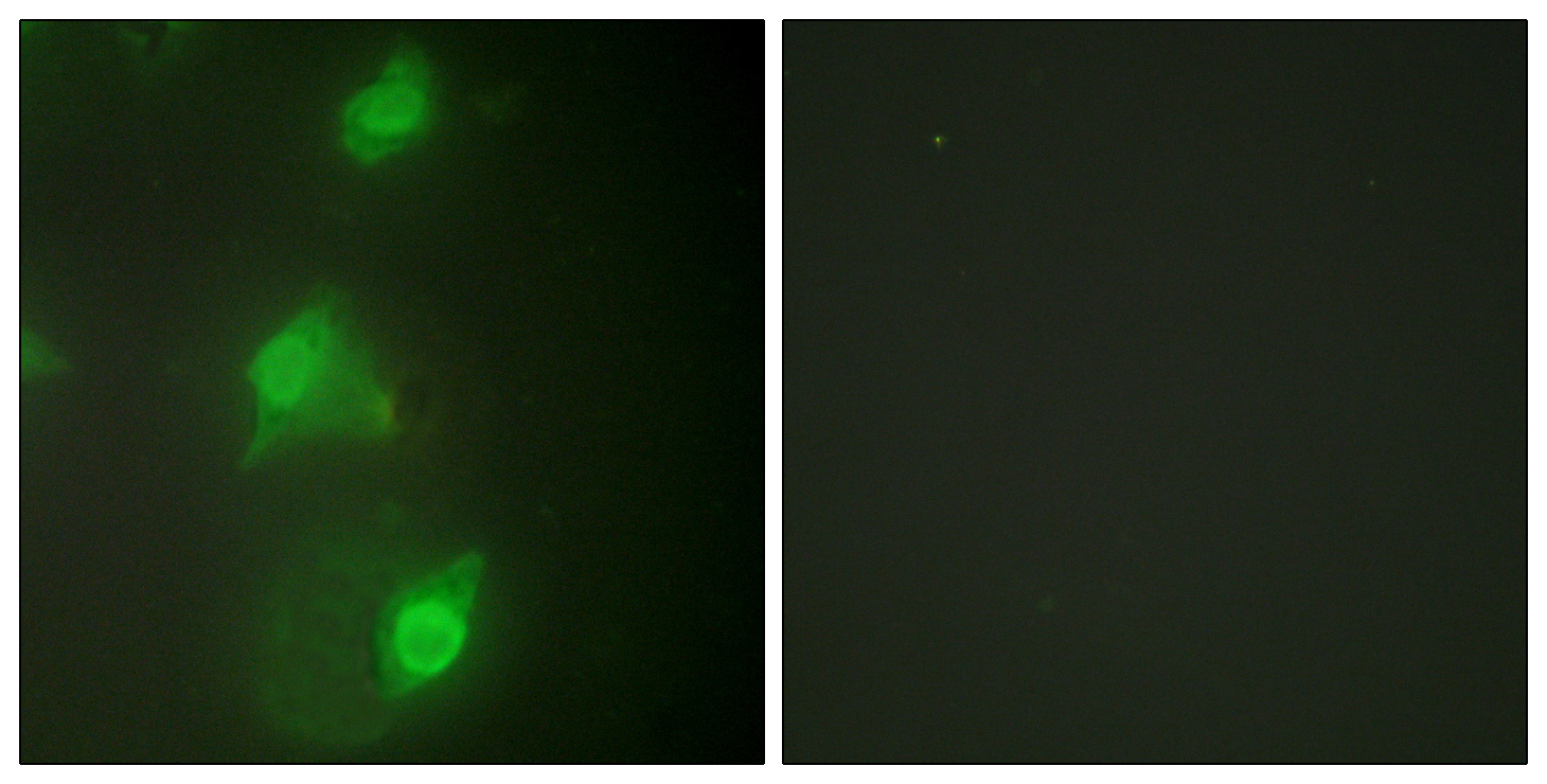 AIRE Antibody (OAAF02030) in HeLa cells using Immunofluorescence