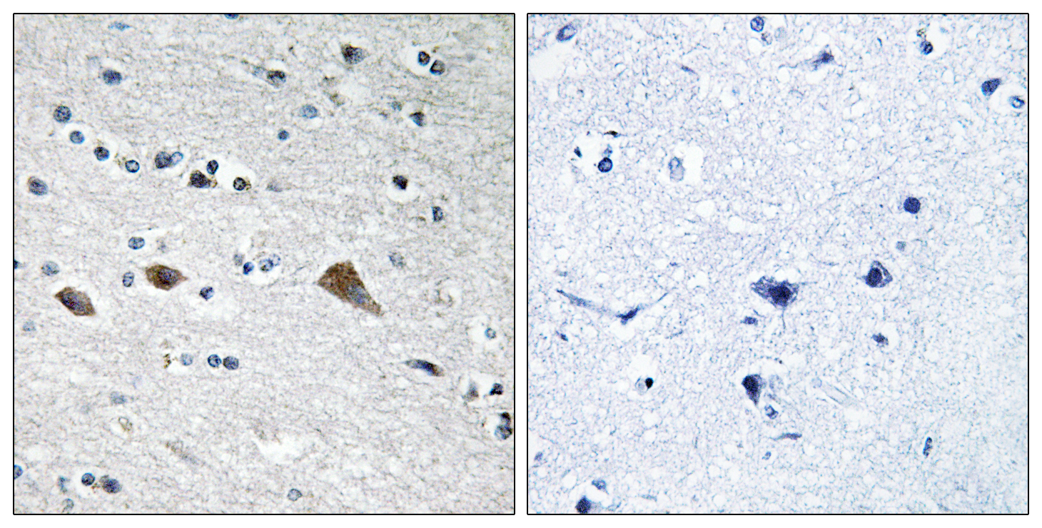 BCAR3 Antibody (OAAF02061) in Human colon carcinoma cells using Immunohistochemistry