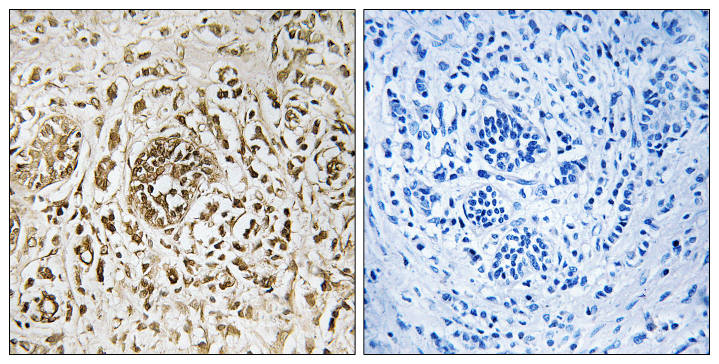 CIB2 Antibody (OAAF02062) in Human breast carcinoma cells using Immunohistochemistry