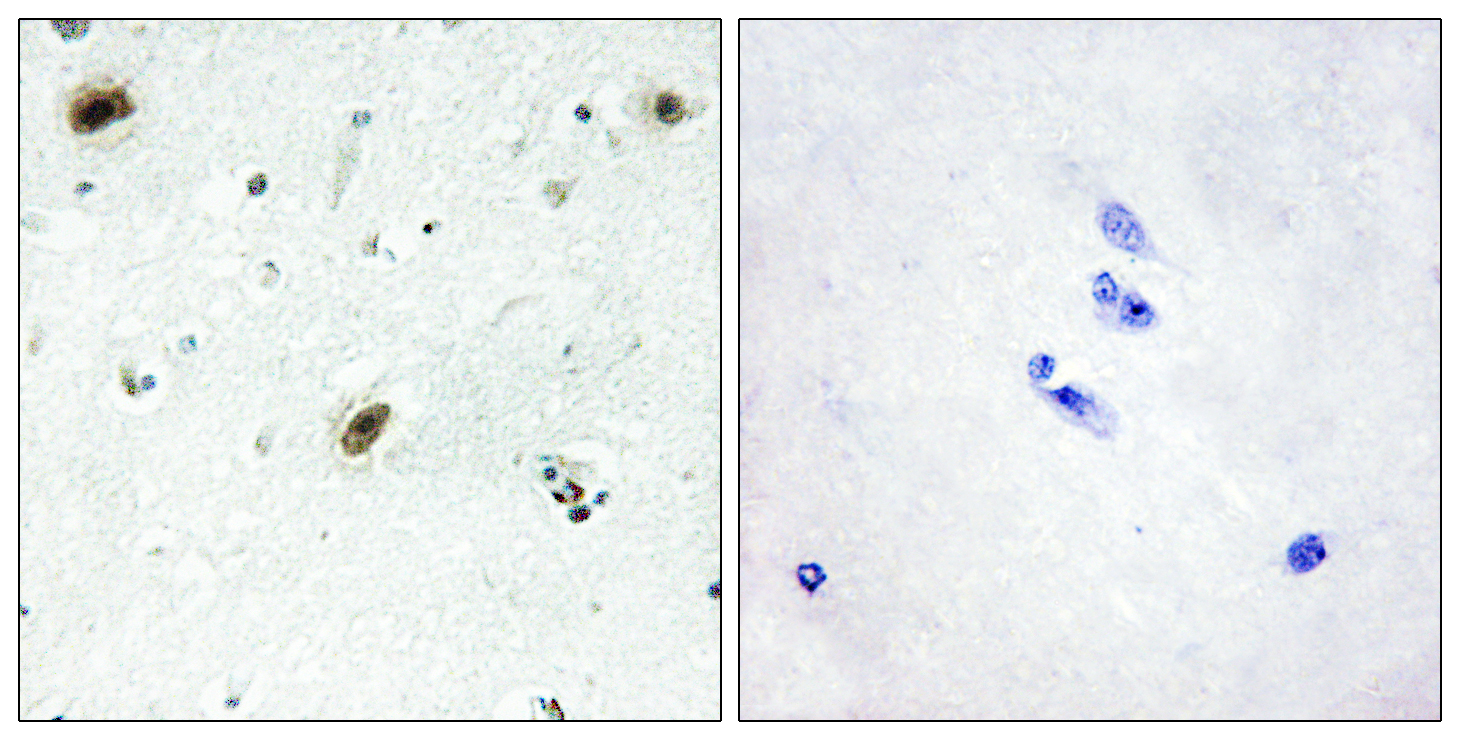 ABL1 Antibody (OAAF02097) in Human brain cells using Immunohistochemistry