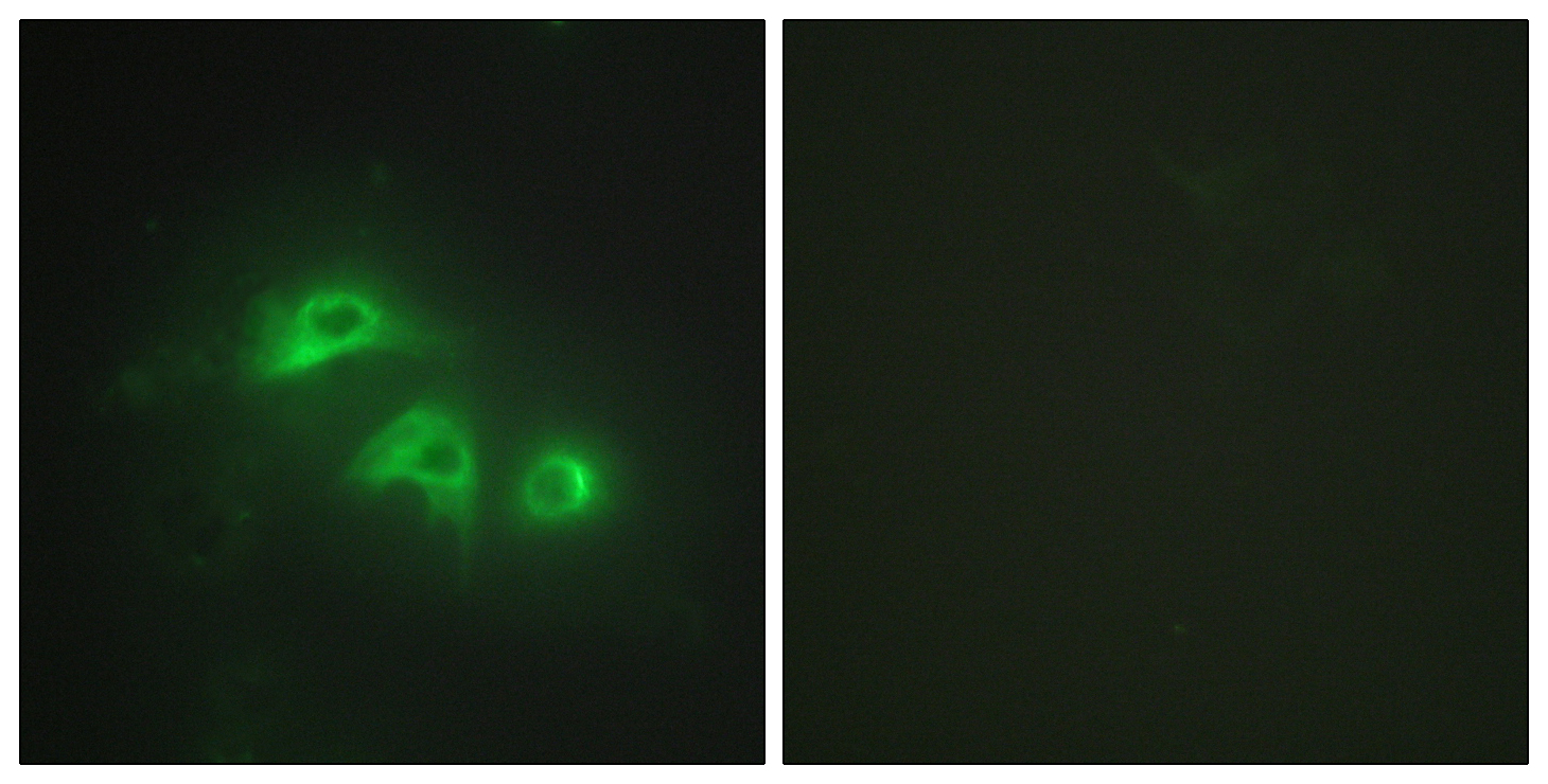AK1 Antibody (OAAF02100) in HepG2 cells using Immunofluorescence