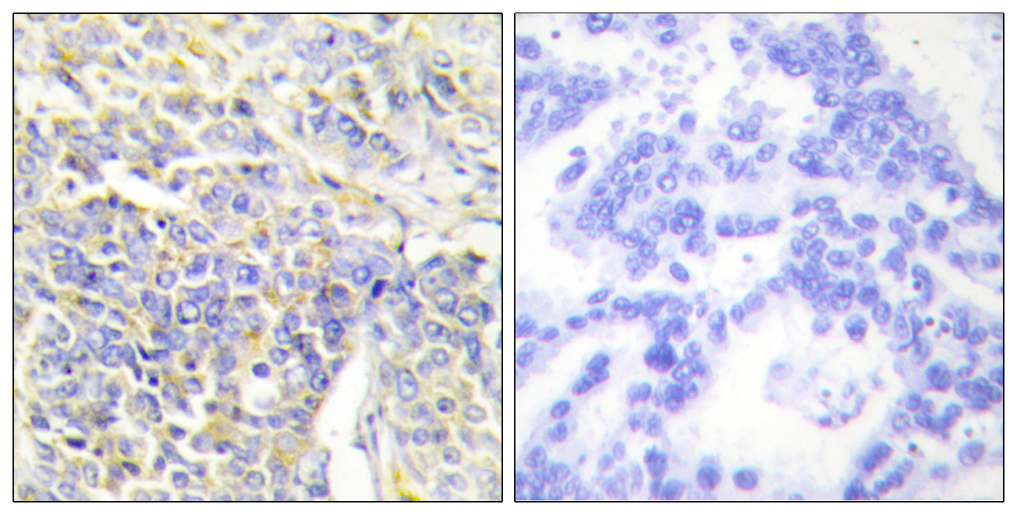 AK1 Antibody (OAAF02100) in Human lung carcinoma cells using Immunohistochemistry