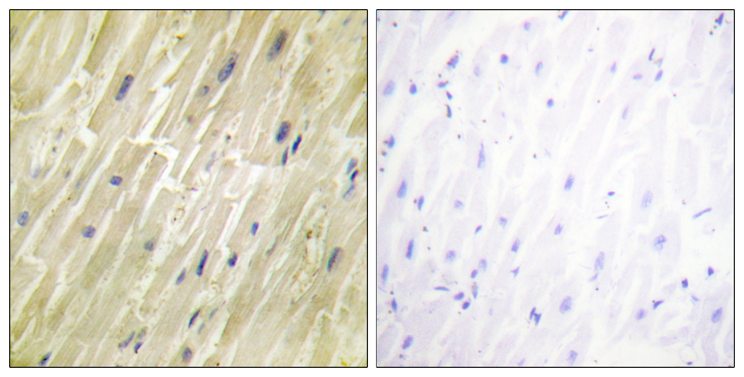 CKM Antibody (OAAF02114) in Human heart cells using Immunohistochemistry
