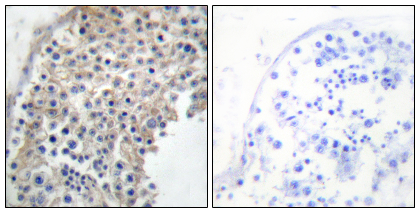 ADRA2A Antibody (OAAF02121) in Human testis cells using Immunohistochemistry