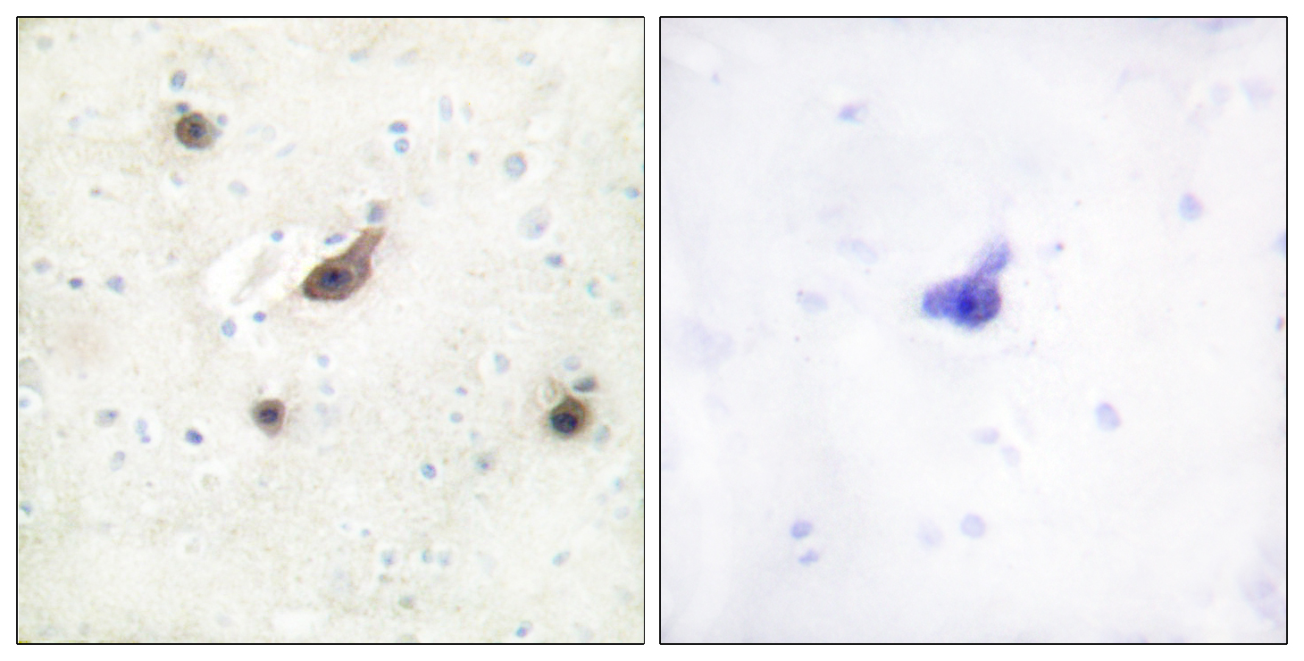 BRAF Antibody (OAAF02150) in Human brain cells using Immunohistochemistry