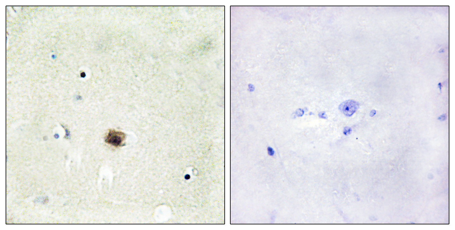 CSRP1 Antibody (OAAF02184) in Human brain cells using Immunohistochemistry