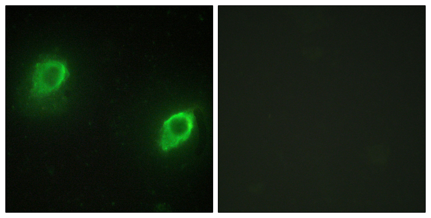 AKAP5 Antibody (OAAF02200) in HeLa cells using Immunofluorescence