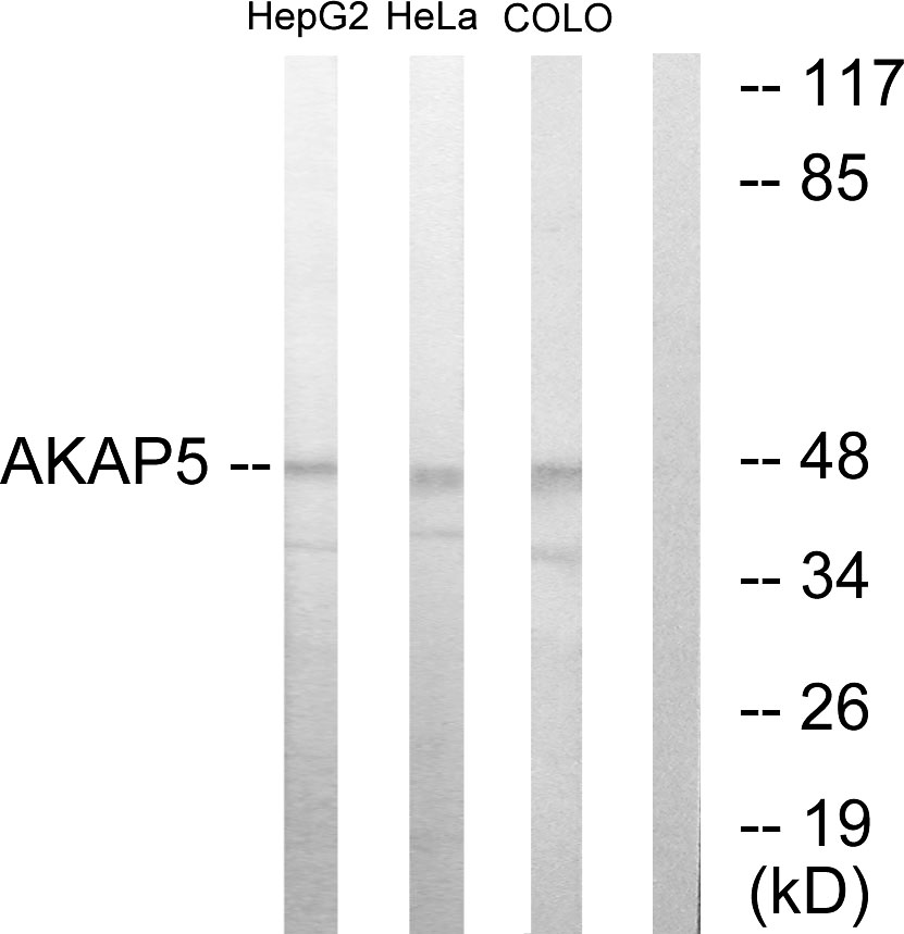 AKAP5 Antibody (OAAF02200) in HepG2, HeLa, COLO205 cells using Western Blot