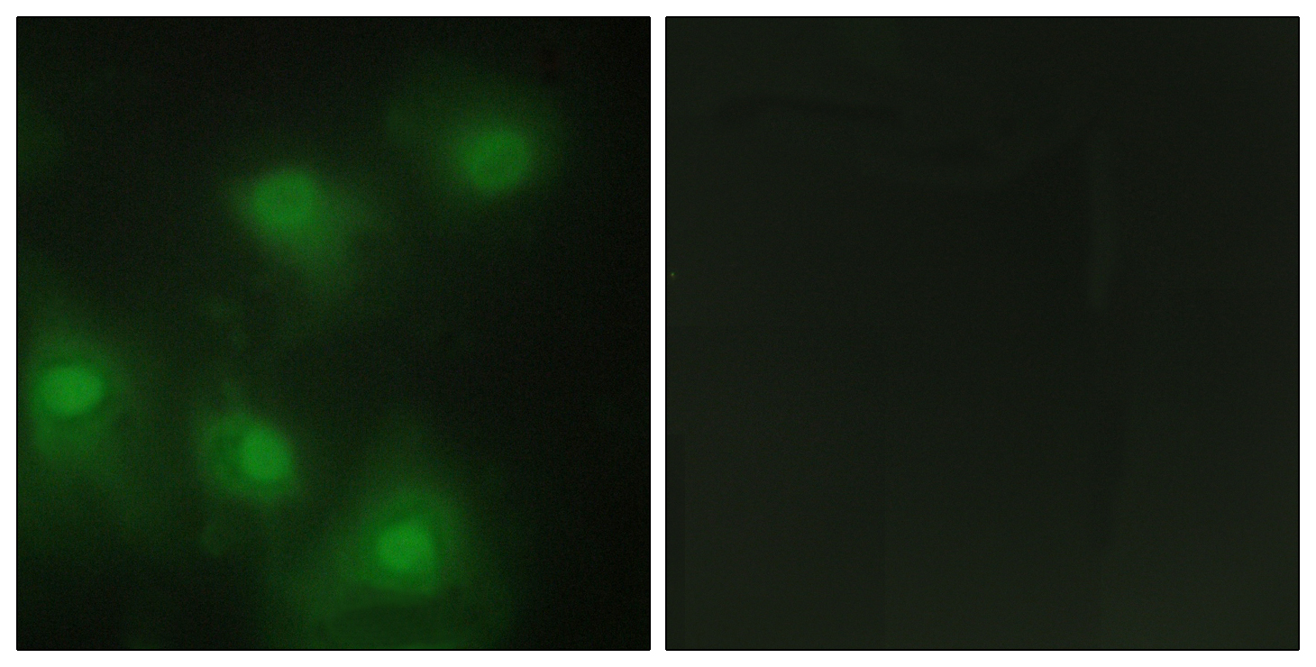 CDK2 Antibody (OAAF02201) in HeLa cells using Immunofluorescence