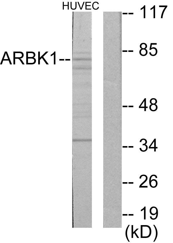 ADRBK1 Antibody (OAAF02202) in HuvEc cells using Western Blot