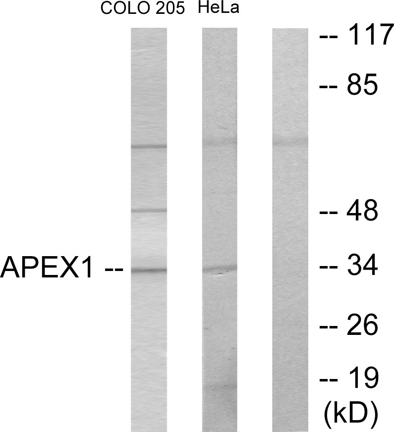 APEX1 Antibody (OAAF02212) in COLO205, HeLa cells using Western Blot