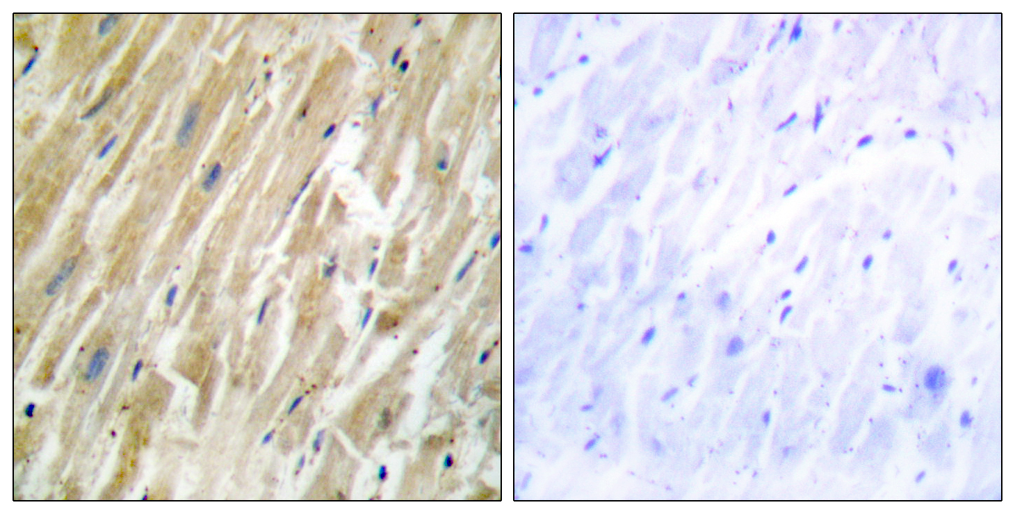 CALR Antibody (OAAF02213) in Human heart cells using Immunohistochemistry
