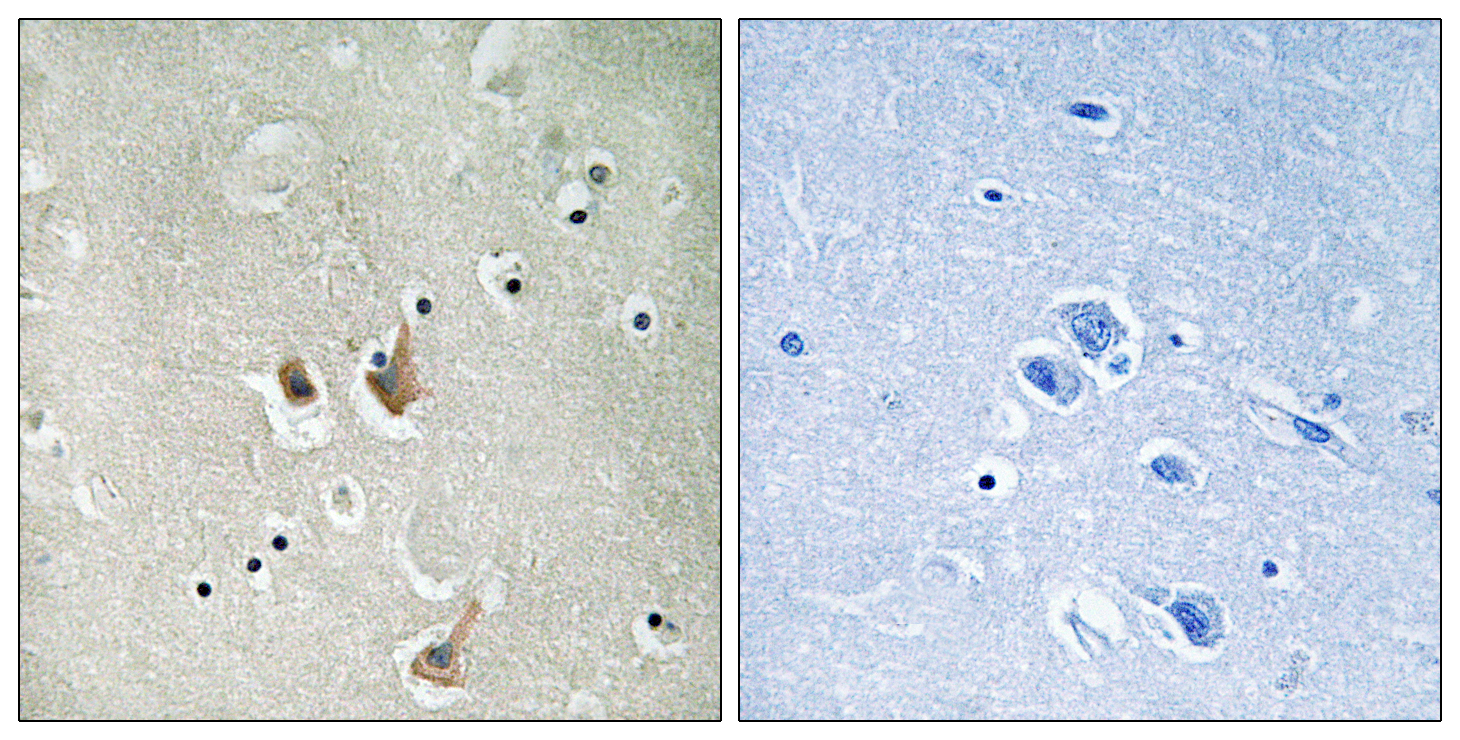 CKS2 Antibody (OAAF02238) in Human brain cells using Immunohistochemistry