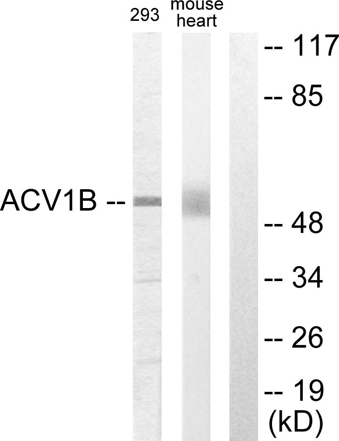 ACVR1B Antibody (OAAF02251) in 293, Mouse liver cells using Western Blot