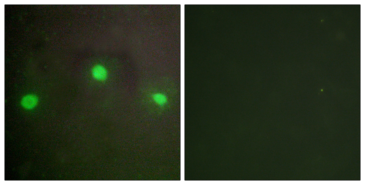 ATRX Antibody (OAAF02274) in A549 cells using Immunofluorescence