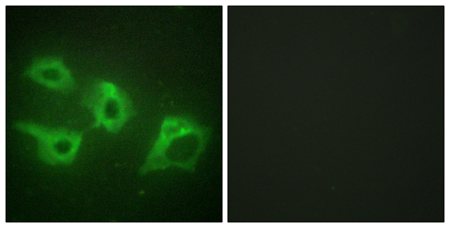 CSNK1A1 Antibody (OAAF02277) in HeLa cells using Immunofluorescence