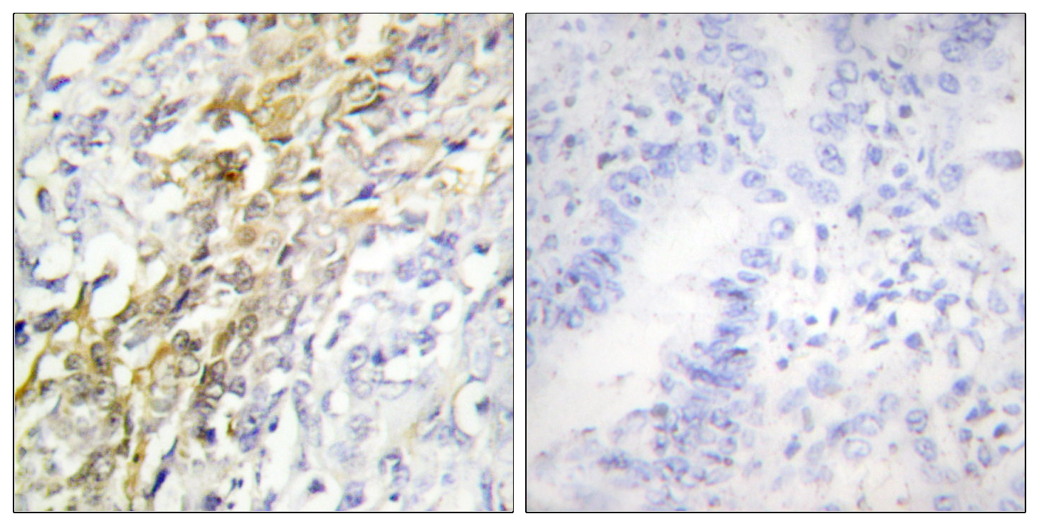 CSNK1A1 Antibody (OAAF02277) in Human lung carcinoma cells using Immunohistochemistry